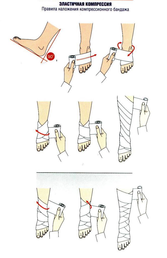 Правила наложения компрессионного бандажа