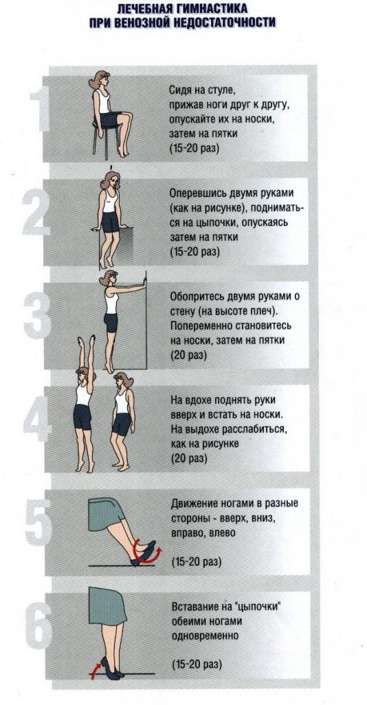 Лечебная гимнастика при венозной недостаточности